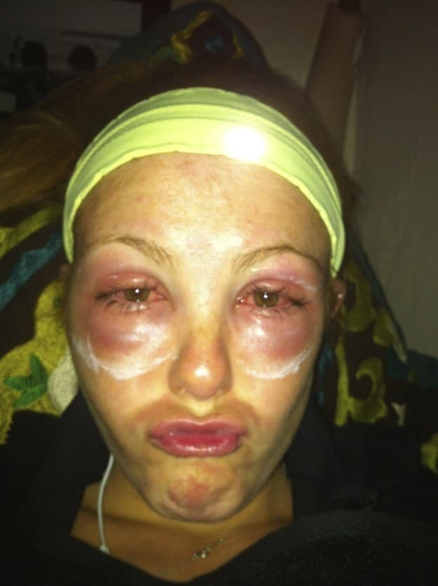 Photos Of Severe Allergic Reactions Best Allergy Sites